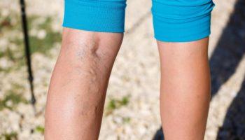 Упражнения, которые нельзя делать при варикозе