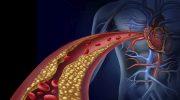 4 продукта, которые сгущают кровь и приводят к тромбообразованию